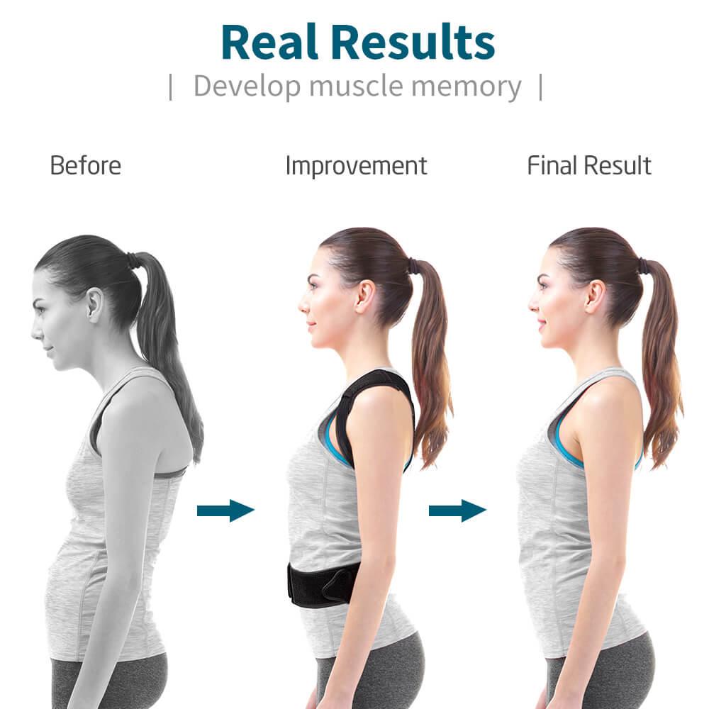 VOKKA Full Support Adjustable Posture Corrector for Men and Women 1 2 1